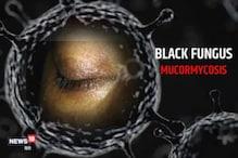 সাৱধান! সমগ্ৰ দেশৰ ৭২৫১জন লোক আক্ৰান্ত হ'ল Black Fungusত; প্ৰাণ ল'লে ২১৯জনৰ