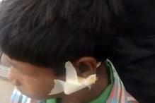 हेड मास्टर ने बच्चे को ऐसा मारा कि कान में लगाने पड़े टांके