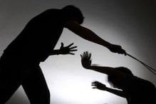 इस बात से नाराज टीचर ने मासूम कर दी बेरहमी से पिटाई