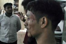 मंडी वल्लभ कालेज में SFI-ABVP में खूनी झड़प, 4 युवक घायल