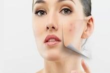 Skin care : इन आदतों की वजह से चेहरे पर निकलते हैं पिंपल्स, आज ही बदलें