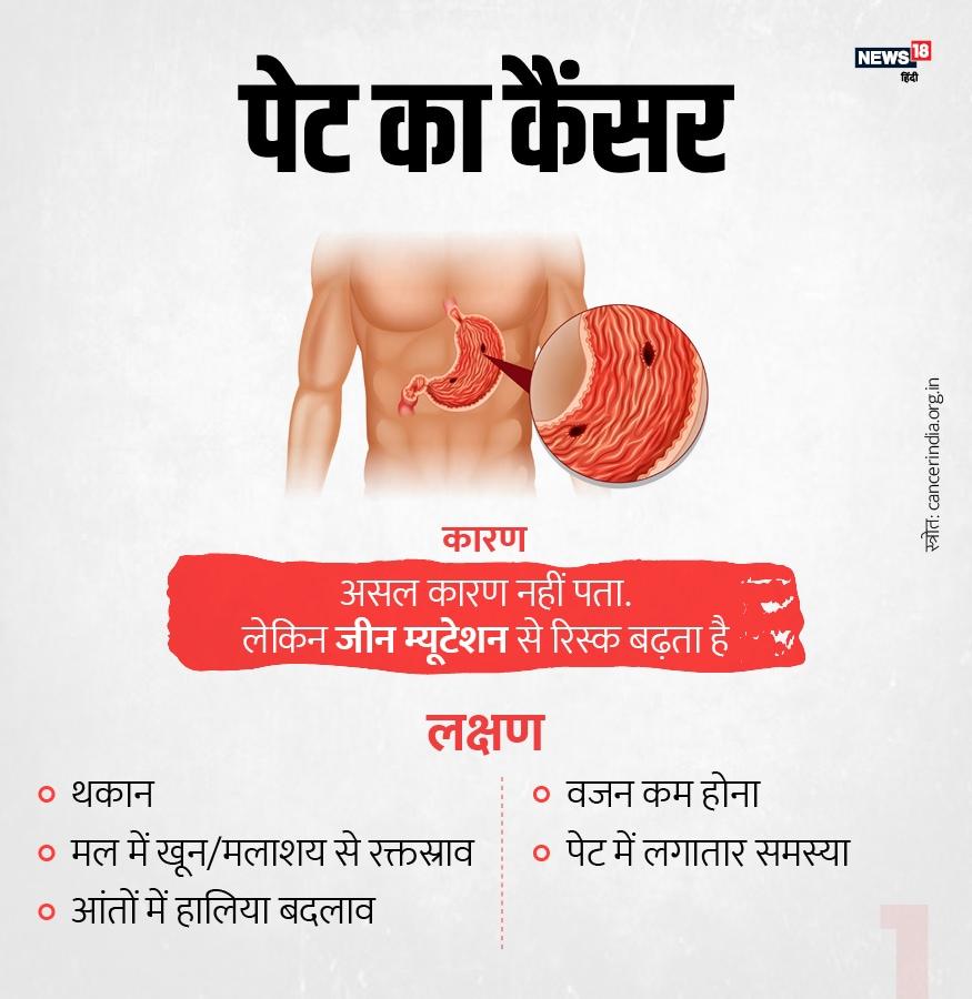 इंसान के अंदर जीन म्यूटेशन के चलते पेट के कैंसर होने का रिस्क बढ़ता है. थकान, मल में खून, आंतों में परेशानी और लगातार वजन में गिरावट इसके प्रमुख कारण हैं.