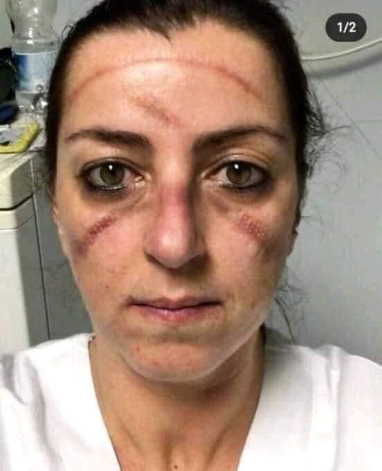 कोरोना वायरस से रात दिन लड़ रही नर्स के चहरे से जब मास्क हटा तो वो खुद भी हैरान रह गईं. इस संक्रमण ने ना सिर्फ लोगों के चहरे पर निशान छोड़े हैं, बल्कि उनके दिलों-दिमाग पर भी प्रभाव डाला है.