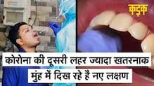 खतरनाक हो चुकी है कोरोना लहर, मुंह के इन लक्षणों को न करें अनदेखा | Coronavirus Oral Symptoms |KADAK