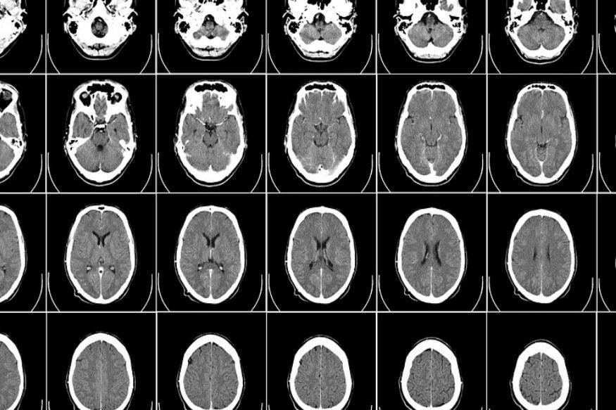 fearless rare brain disease