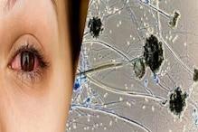 जबलपुर: ब्लैक फंगस के इंजेक्शन के रिएक्शन से हड़कंप, नकली होने का अंदेशा