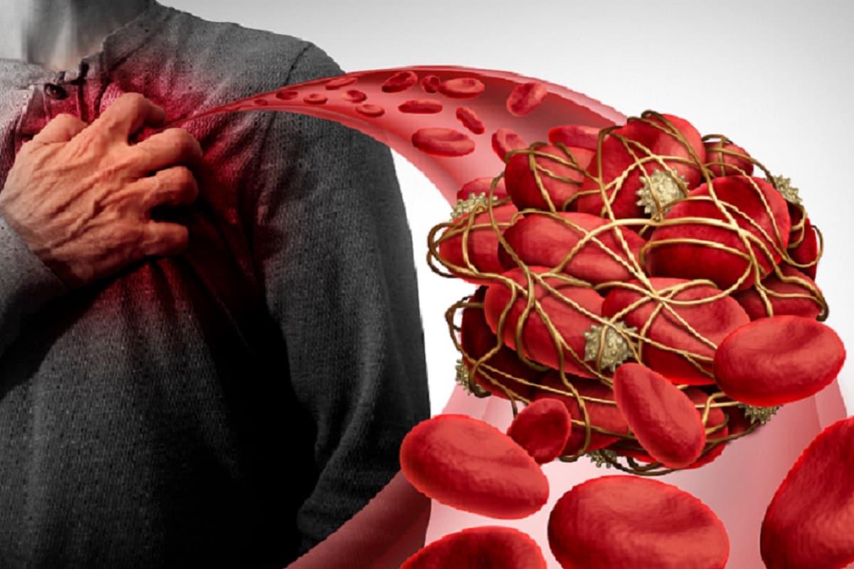 Health, Covid-19, Corona virus, blood clotting, blood thinning, preventive measures, treatment,