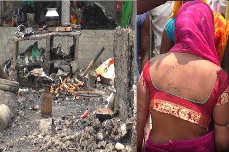 बिहार के पूर्णिया में महादलित बस्ती के 13 घरों को पेट्रोल छिड़ककर आग लगा दी गई.