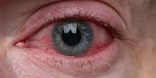 कोरोना वायरस आपकी आंखों को कैसे प्रभावित कर रहा है? इस तरह बच सकते हैं...