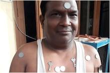 अलीगढ़ में शरीर पर सिक्के और चम्मच चिपकने से व्यक्ति के उड़े होश, फिर...