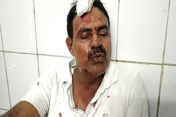 UP: पीलीभीत में बिल्ली और कबूतर की लड़ाई में हुई मारपीट में घायल तौकीर