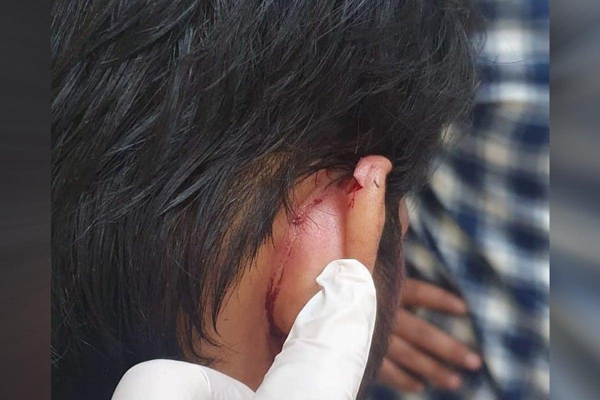अरविंद अकेला कल्लू ने इंस्टाग्राम (Arvind Akela kallu instagram) पर अपनी कुछ भयानक चोटों के निशान वाली फोटोज शेयर किए हैं, जिसमें उनके चेहरे पर ढेर सारे निशान देखने के लिए मिल रहे हैं. हालांकि, उन्होंने फोटो में ठीक होने तक के निशान दिखाए हैं.