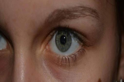 रेजिना अमोरम (Regina Amorim) ग्लूकोमा (glaucoma) के इलाज के लिए आईड्रॉप डालती थीं, लेकिन एक दिन उनके ब्वॉयफ्रेंड (boyfriend) ने ऐसी गलती कर दी, कि रेजिना के आंखों की रोशनी जाते-जाते बची.
