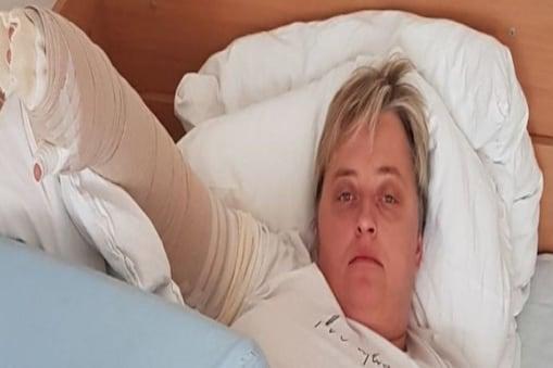 ब्रेस्ट कैंसर की सर्जरी के बाद अचानक महिला की छाती आउट ऑफ़ कंट्रोल फूलने लगी (इमेज- Liverpool ECHO)