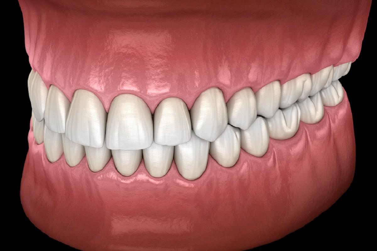इससे हमें दातों (Teeth) की स्थितियों के विकास के नए तरीके पता चले हैं, लेकिन इससे जीवाश्व विज्ञानियों को हमारे पूर्वजों में विशेष जबड़ों (Human Jaws) के विकास को समझने में भी मदद मिलेगी. ग्लोवाका का कहना है कि इस अध्ययन से हमें दांतों और जबड़ों के विकास आदि के संबधों को समझने के लिए नया तरीका मिलता है. यह अध्ययन साइंस एडवांस में प्रकाशित हुआ है. (प्रतीकात्मक तस्वीर: shutterstock)