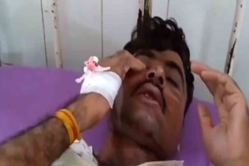 The injured constable has been admitted to Barmer District Hospital.  There he is undergoing treatment.
