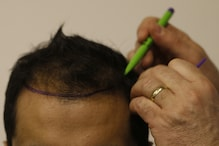 Researchers Find Answer to Hair Loss in Existing Drug