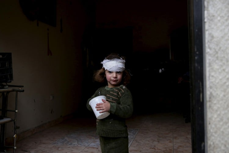 A girl, who was injured by what activists said was shelling by forces loyal to Syria's President Bashar al-Assad, stands at the entrance of her house in the Douma neighborhood of Damascus, Syria