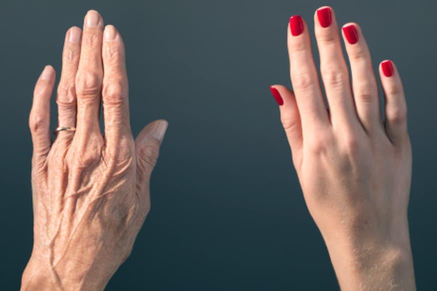 3D printing, 3D printed hands
