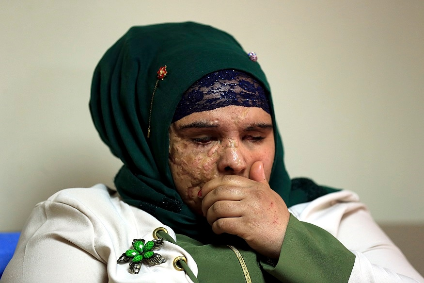 In this Monday, Nov. 5, 2018 photo, Saja Ahmed Saleem, 17, who was injured  in an explosion in 2007, talks to The Associated Press before her reconstructive surgery in Baghdad, Iraq. Those whom treatment not available at state-run hospitals and can't afford treatment at private clinics rely on social media to make appeals that grab attention of some surgeons to help them regain a chance at life. (AP Photo/Hadi Mizban)