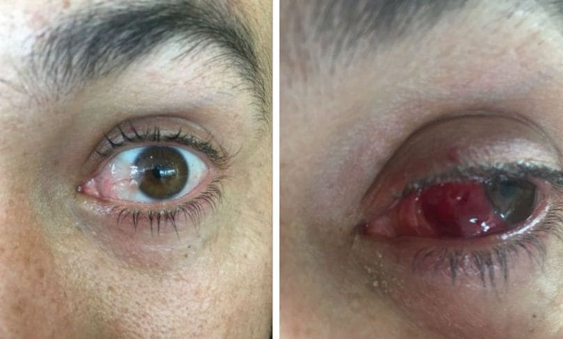 Pre-Operation Eye (L) and Post-Operation Eye (Twitter/ Ross Taylor)