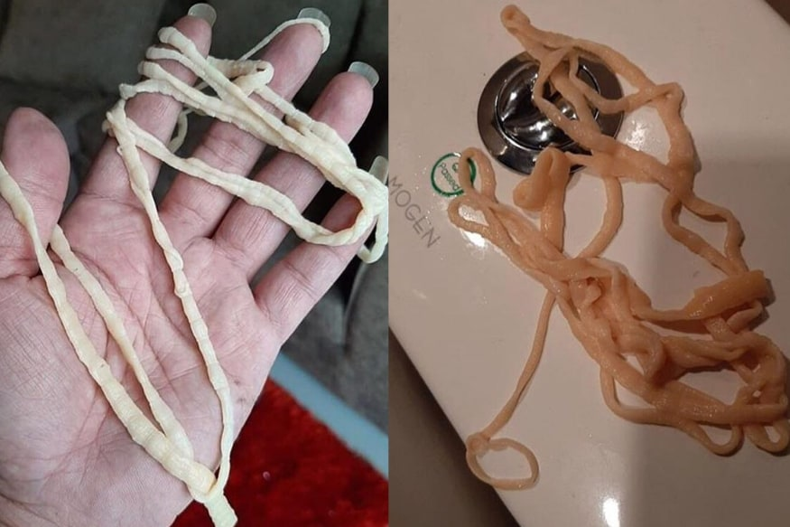 Man Left Horrified after He Pulls out 32 Feet Tapeworm from His Body in the Restroom