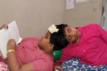 Twin Test for Telangana Authorities as Conjoined Sisters Prepare for Class 10 Exams