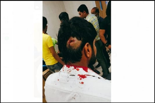 NSUI Gen Sec of Gujarat sustained grave injuries during the incident.