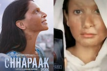 Dear Deepika Padukone, Surviving Acid Attack is a Lot Harder Than Recreating the 'Look' on TikTok
