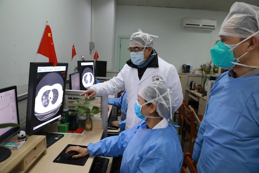 Medical workers inspect the CT (computed tomography) scan image of a patient at the Zhongnan Hospital of Wuhan University following an outbreak of the new coronavirus in Wuhan, Hubei province, China. (Image: Reuters)