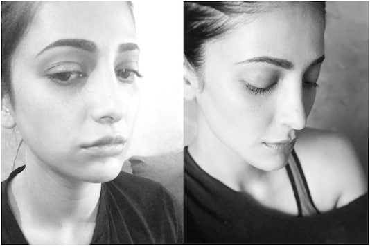 Shruti Haasan Undergoes Plastic Surgery, Shuts Down Trolls Saying Not Ashamed to Admit