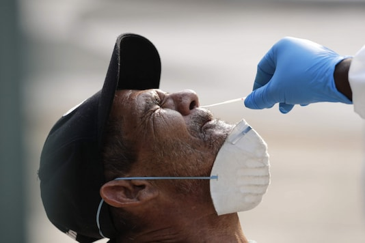 A homeless man is tested for COVID-19 in a program administered by the Miami-Dade County Homeless Trust, during the new coronavirus pandemic in Miami. (Image: AP)