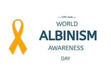 International Albinism Awareness Day 2020: Date, Theme and History