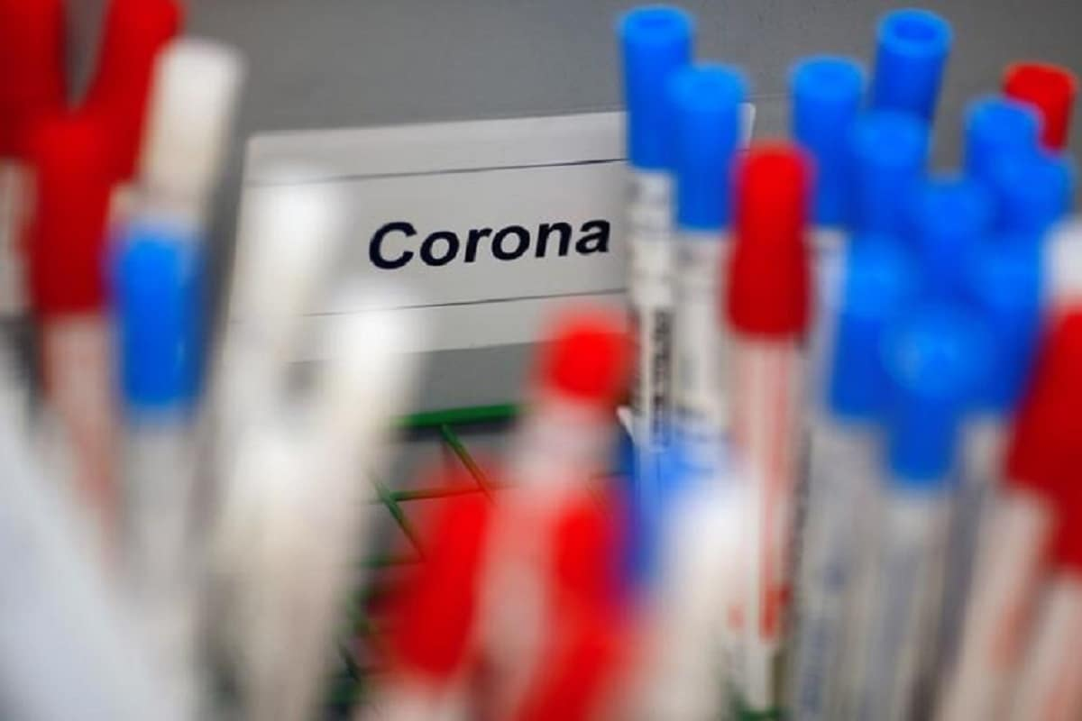 US Scientists Developing Coronavirus Strain to Deliberately Infect Volunteers for 'Challenge' Trials