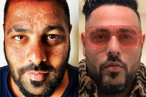 Badshah Looks Unrecognisable as He Suffers Sunburn While Holidaying in Maldives
