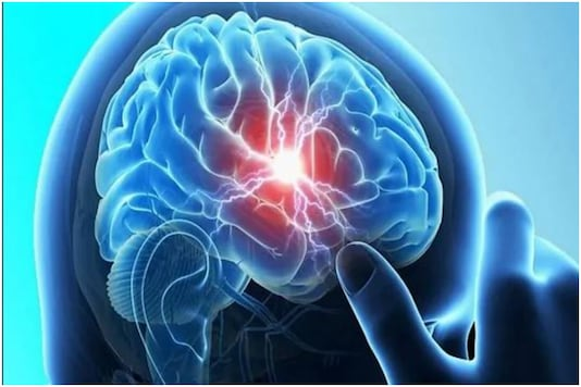 Traumatic Brain Injury Assessment Now Possible Within 15 Minutes: Study