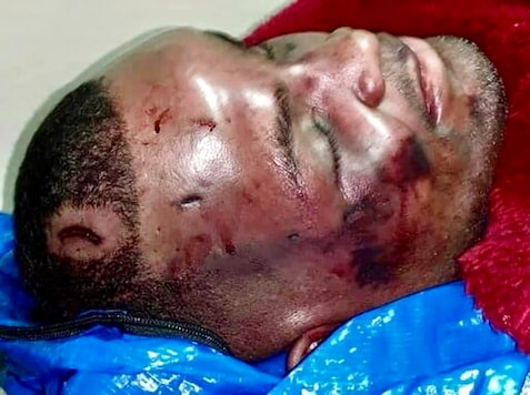 EDS NOTE: GRAPHIC CONTENT - This undated photo provided by the family of Ronald Greene via the Baton Rouge chapter of the NAACP in September 2020 shows injuries on his body. Greene's family filed a federal wrongful death lawsuit in May 2020 alleging troopers