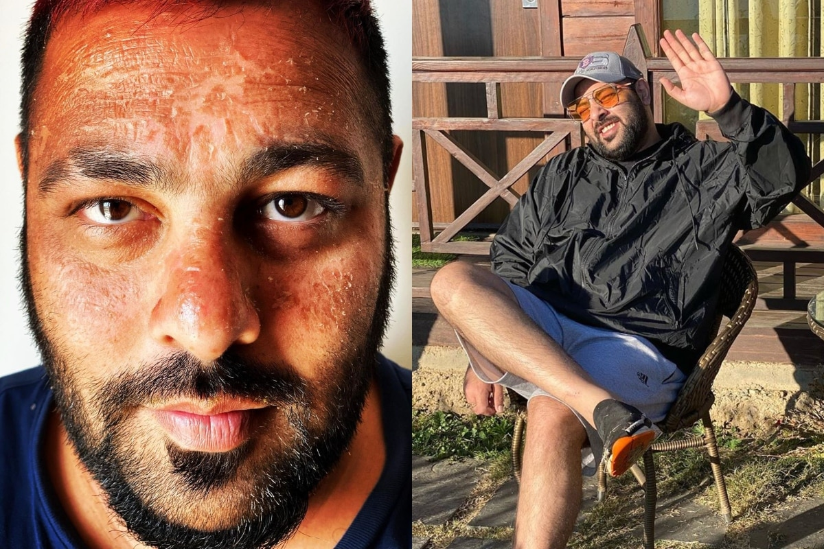 Badshah Suffers Sunburn While Holidaying in Maldives, Check Out Varun Dhawan's Ultimate Comment