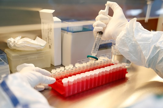 A scientist filters out samples during the research and development of a vaccine against the coronavirus disease (COVID-19) at a laboratory of BIOCAD biotechnology company in Saint Petersburg, Russia. (Image for representation/Reuters)