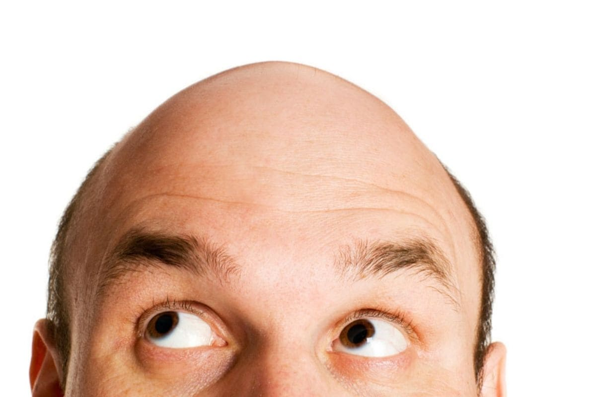 Mumbai Woman Accuses Husband of 'Cheating' for Hiding His Baldness, Files Police Case