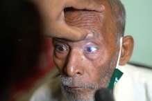 'Baba Ka Dhaba' Couple to Undergo Another Cataract Surgery as Delhi Hospital Steps in to Help