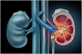 Here's How You Can Naturally Manage Kidney Stones