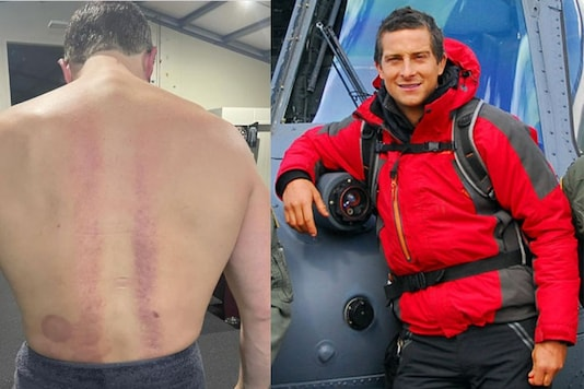 Bear Grylls Says He is in Pain Every Day After Breaking His Back in Accident 25 Years Ago