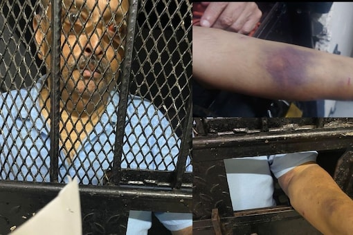 Photos of Mehul Choksi with injury marks on his eye and hands.