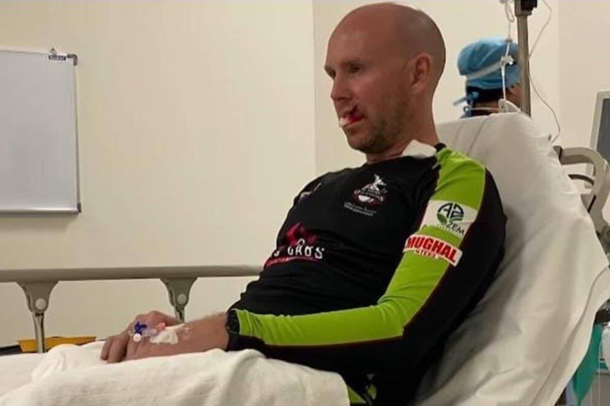 PSL 6: Ben Dunk Suffers Freak Injury on Lip, Receives Seven Stitches thumbnail