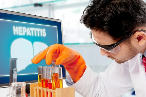 With many people uninformed that they may be infected, World Hepatitis Day is observed every year on July 28 to raise awareness about it. (Representational Image: Shutterstock)