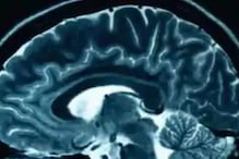 Artificial Intelligence May Help Diagnose Dementia, Says Study