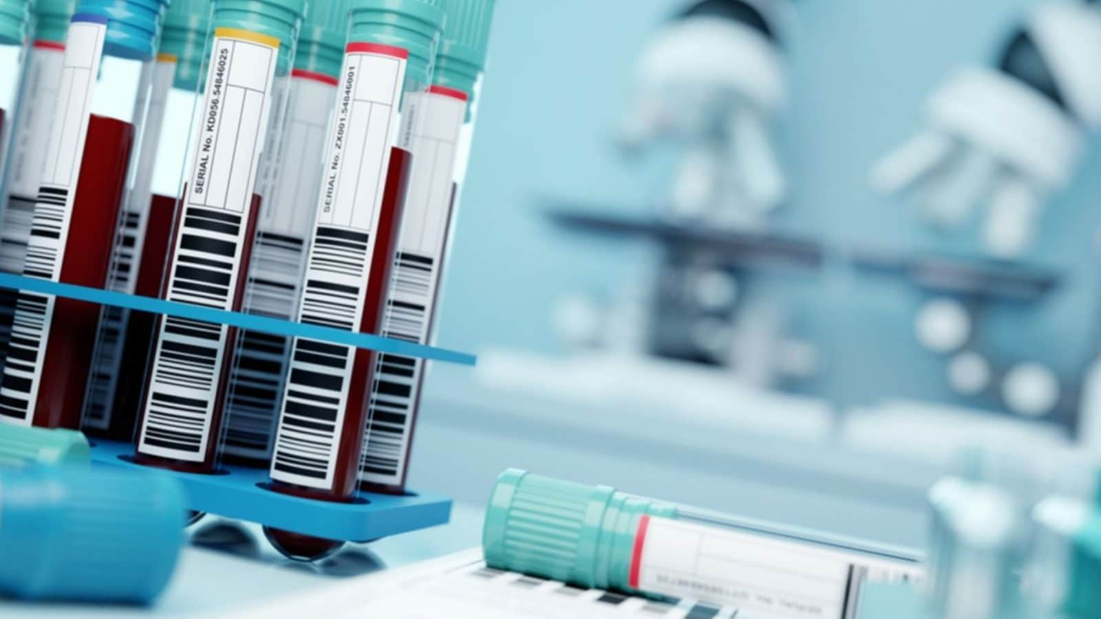 Blood Plasma Therapy Doesn't Help Seriously Ill Covid-19 Patients: Study