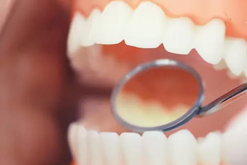 Tooth cavity can affect people of all age groups