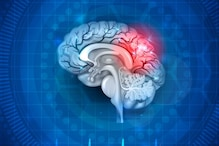 These Lifestyle Habits Can Increase the Risk of Brain Stroke, Read On